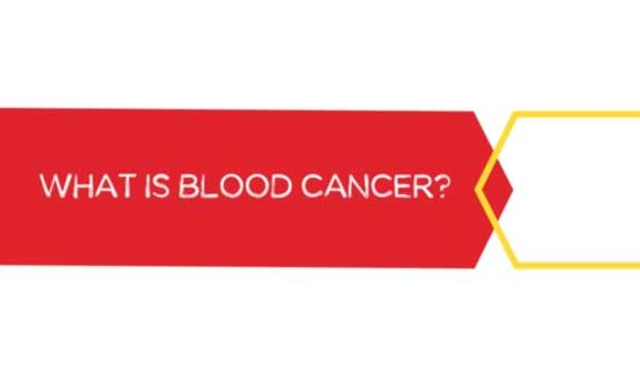 DKMS – What Is Blood Cancer?